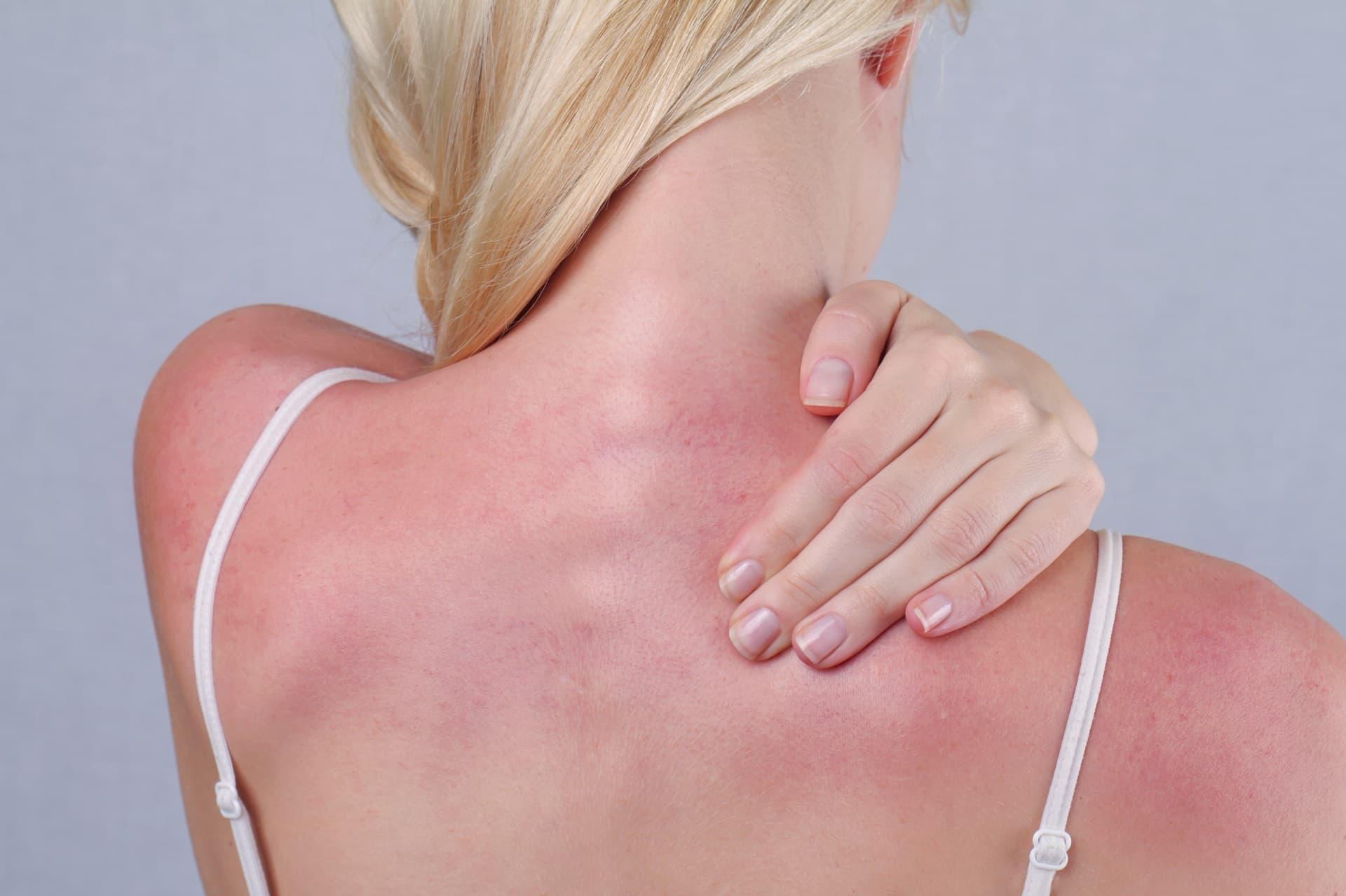 Frau mit Sonnenbrand am Ruecken