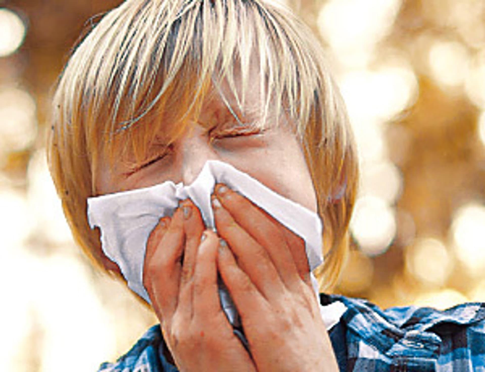 Allergien01 kl