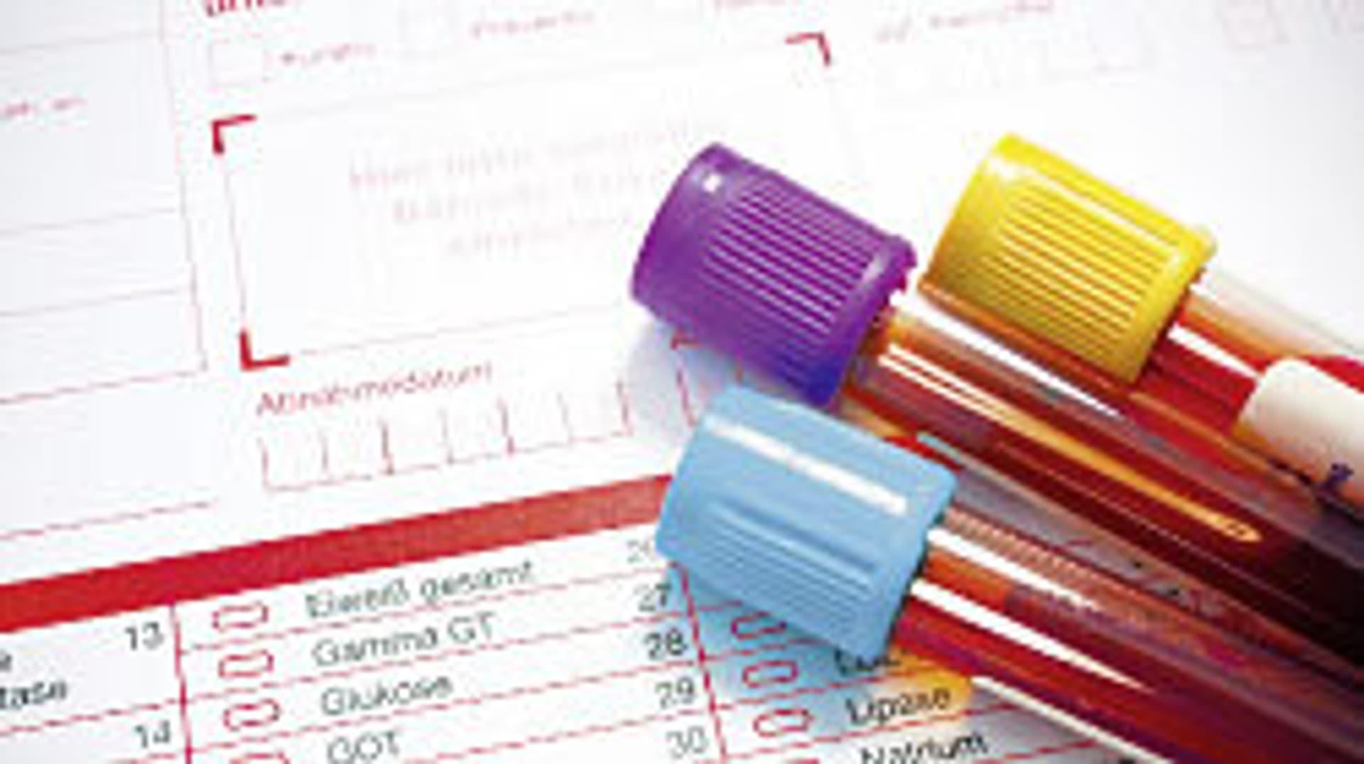 IgG-Test Nahrungsmittelallergie
